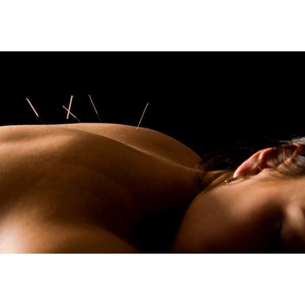 Acupuntura para Dor nas Costas na Consolação - Acupuntura para Estresse
