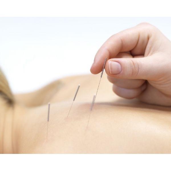 Acupuntura para Estresse Ansiedade na Lapa - Acupuntura Auricular