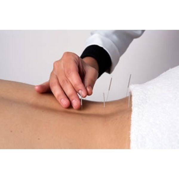 Clínica de Acupuntura Auricular em Americana - Acupuntura para Estresse