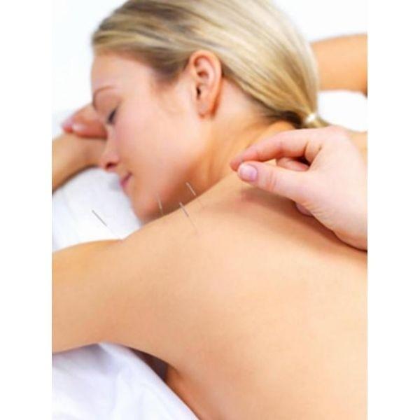 Clínica de Acupuntura para Estresse na Vila Leopoldina - Acupuntura para Estresse