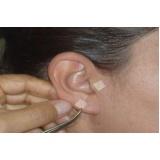 curso de acupuntura auricular no Aeroporto