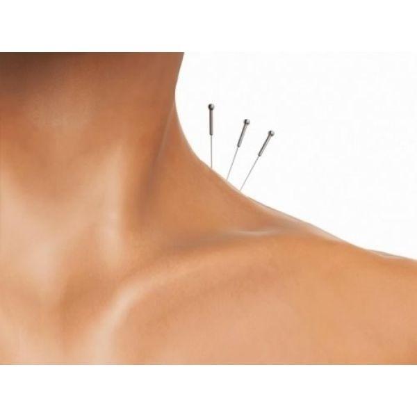 Tratamentos Acupuntura no Pacaembu - Acupuntura para Nervosismo